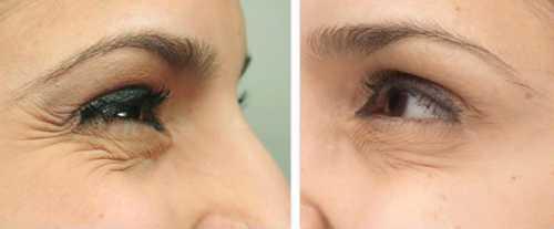 напряженные глаза